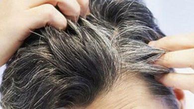 Photo of علماء يكتشفون أن «التوتر يؤدي للشيب المبكر» ويتوصلون لعلاج محتمل لذلك