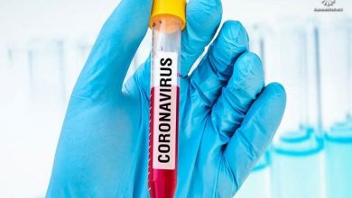 Photo of أكثر من ثلاثين دراسة فرنسية بين سلسلة أبحاث حول العالم لإيجاد علاج لفيروس كورونا