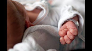 Photo of ما الذي نعرفه عن مرض كاواساكي الذي يصيب الأطفال والمحتمل ارتباطه بفيروس كورونا؟